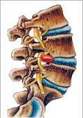 hernia-discal-lumbar-2